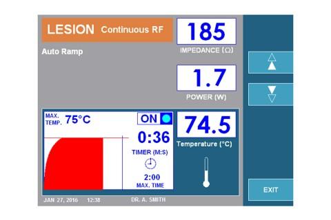 URF-3AP Lesion Continuous RF