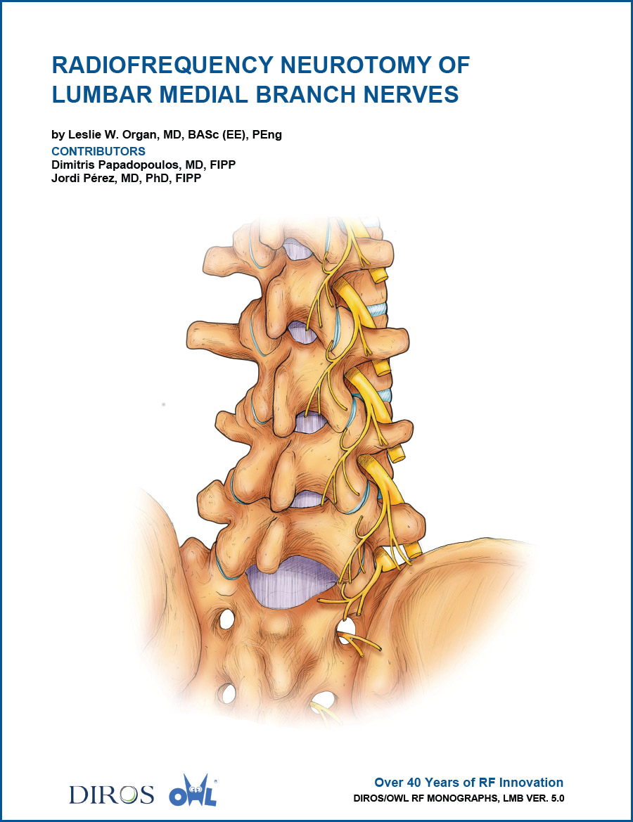 Radiofrequency Neurotomy of Lumbar Medial Branch Nerves