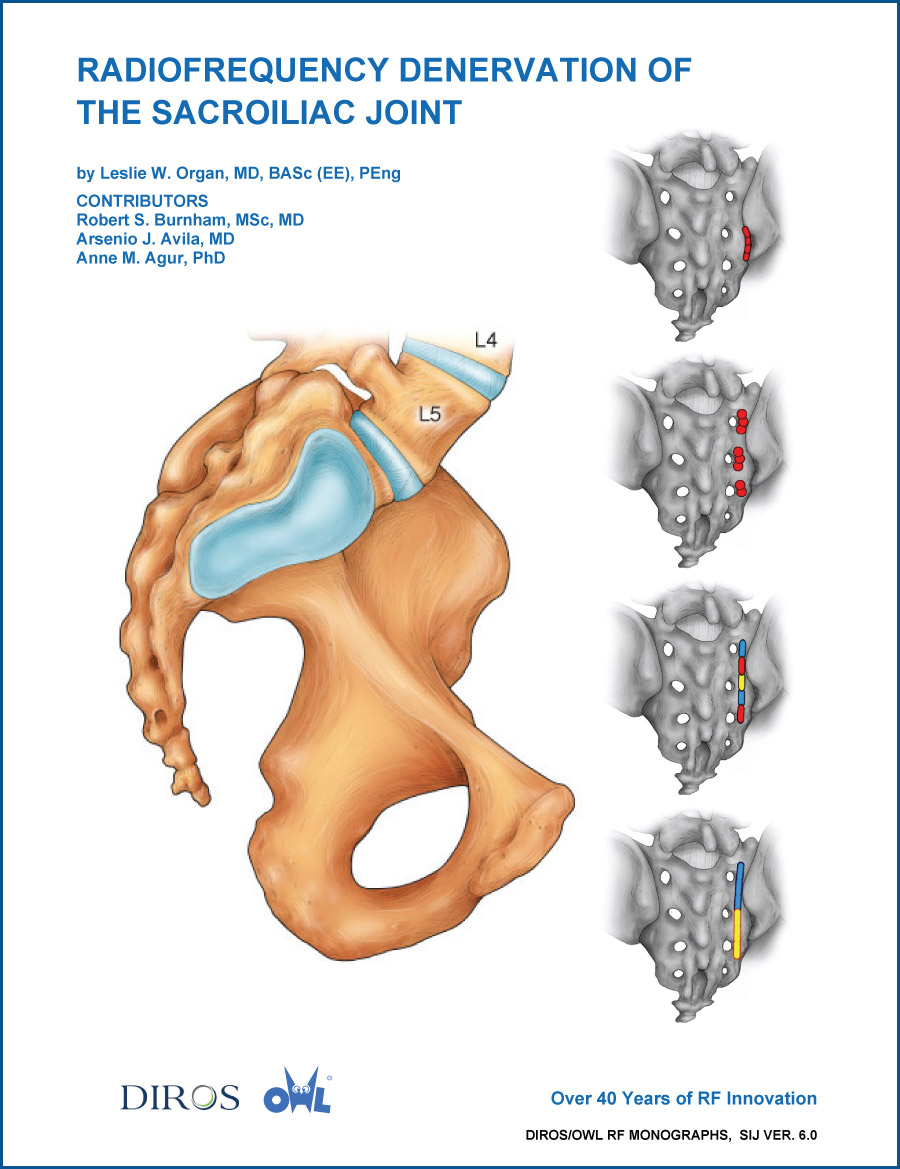 Radiofrequency Denervation of the Sacroiliac Joint